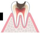 歯の神経まで虫歯が進んでる。