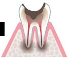 基本歯を残す事が出来ない場合が多い。